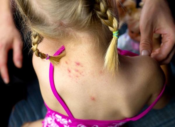Centro di riferimento per la prevenzione e la diagnosi dell'allergia al veleno di imenotteri